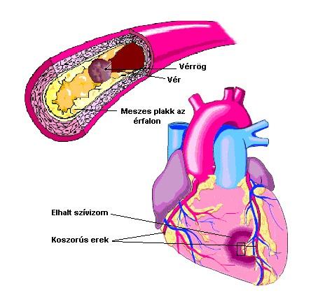 magas vérnyomás és magas koleszterinszint