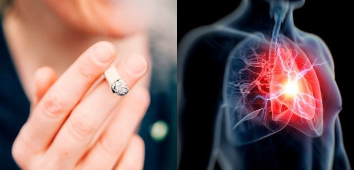 hipertónia az ezoterikában hirudoterápia és magas vérnyomás kezelés