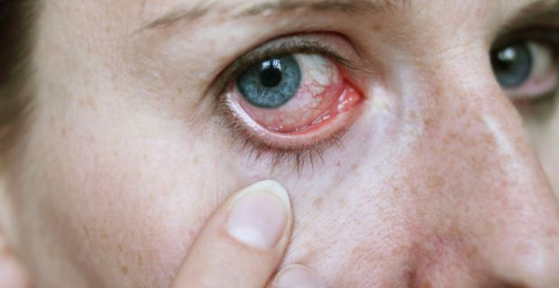 a magas vérnyomás cikázik a szemekben