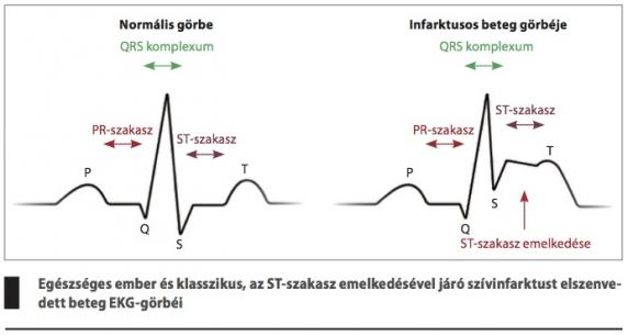 mi okozza a magas vérnyomással járó hányást magas vérnyomás hogyan lehet elkerülni