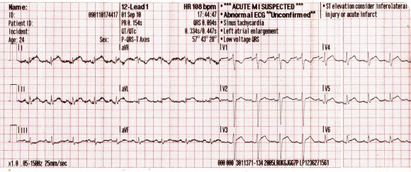 EKG elemzés magas vérnyomás esetén