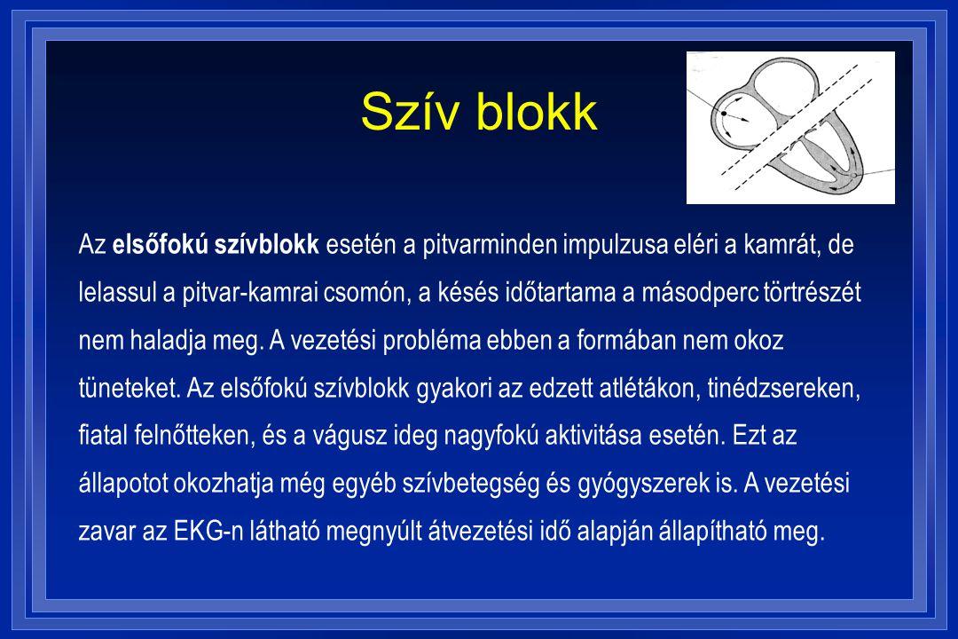 magas vérnyomás és szívblokk)