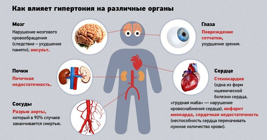 magas vérnyomás 2 fokos ok