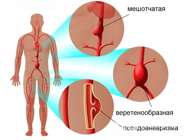 hasi aorta magas vérnyomás esetén