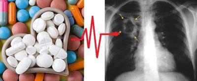 gyógyszerek magas vérnyomás mellékhatások nélkül köhögés