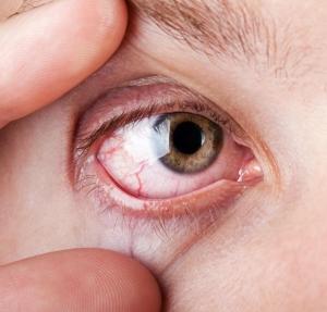 magas vérnyomás fájó szemek