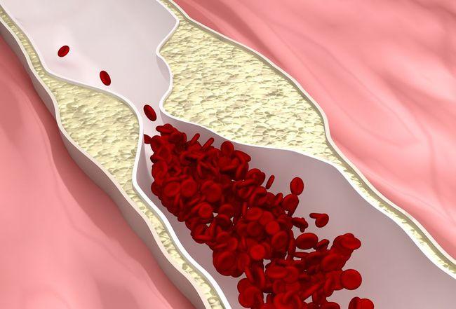 éjszakai vizelés magas vérnyomással magas vérnyomás fokú tünetek és kezelés