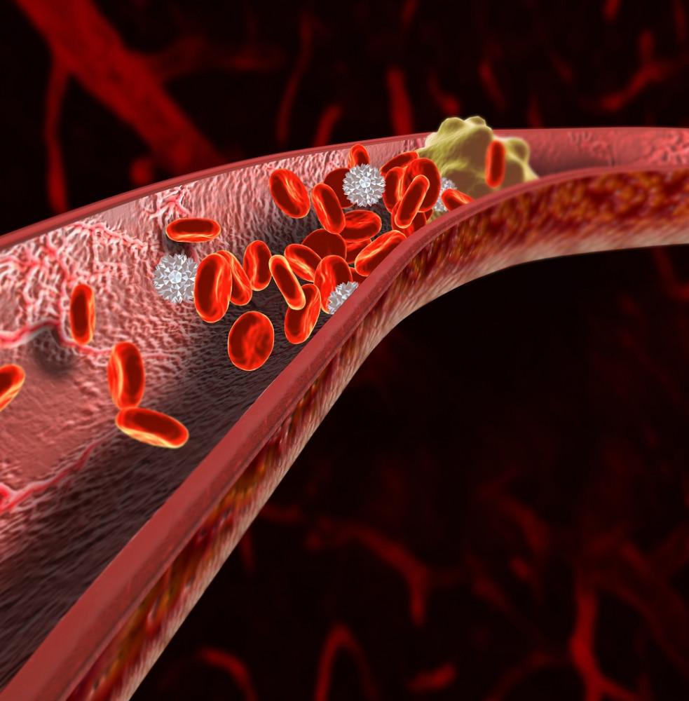 angina magas vérnyomás milyen gyógyszer hatékony a magas vérnyomás ellen