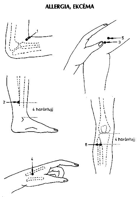 akupunktúrás pontok magas vérnyomás esetén)
