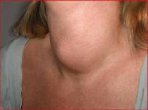 hypertonia kezelése pajzsmirigy-gyulladással