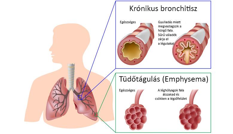 obstruktív bronchitis és magas vérnyomás)