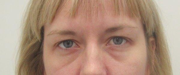 Táskás szem: mi okozza?
