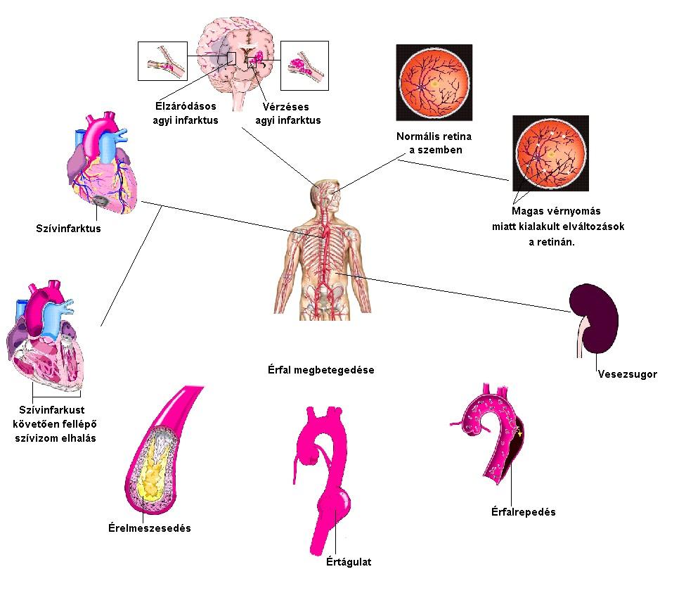 súlyos magas vérnyomás következmények)