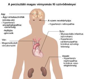 Magasvérnyomás-betegség tünetei és kezelése - HáziPatika, Magas vérnyomás, ami bekövetkezik