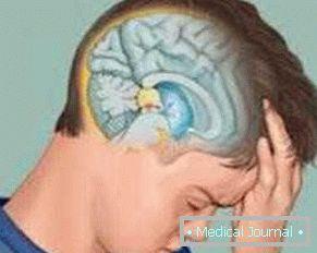 agyalapi mirigy adenoma és magas vérnyomás
