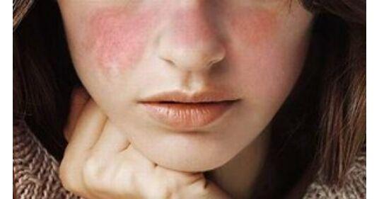 szisztémás lupus erythematosus magas vérnyomás