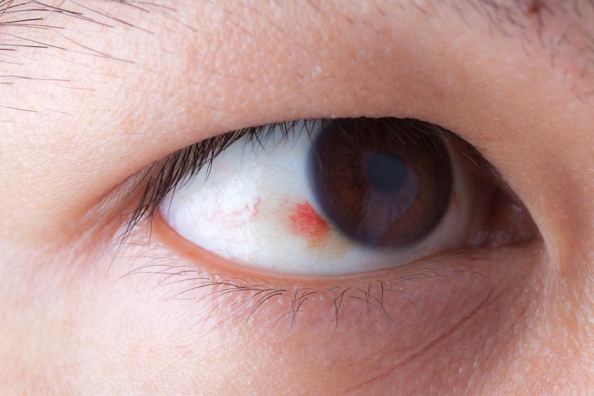 a magas vérnyomás hatása a szemre)