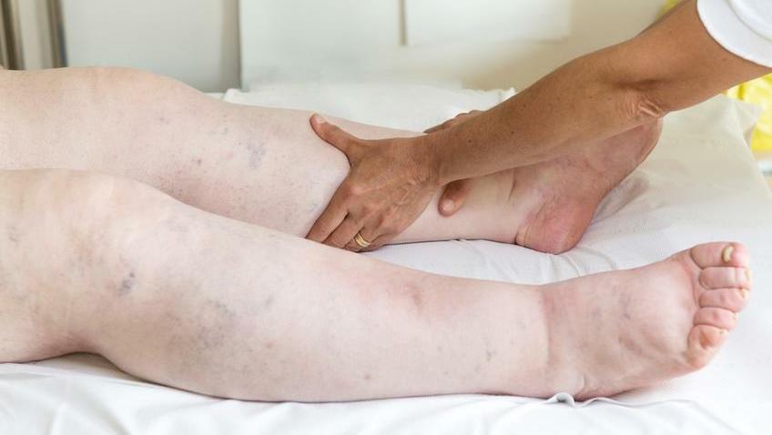 ödéma magas vérnyomás kezelés)