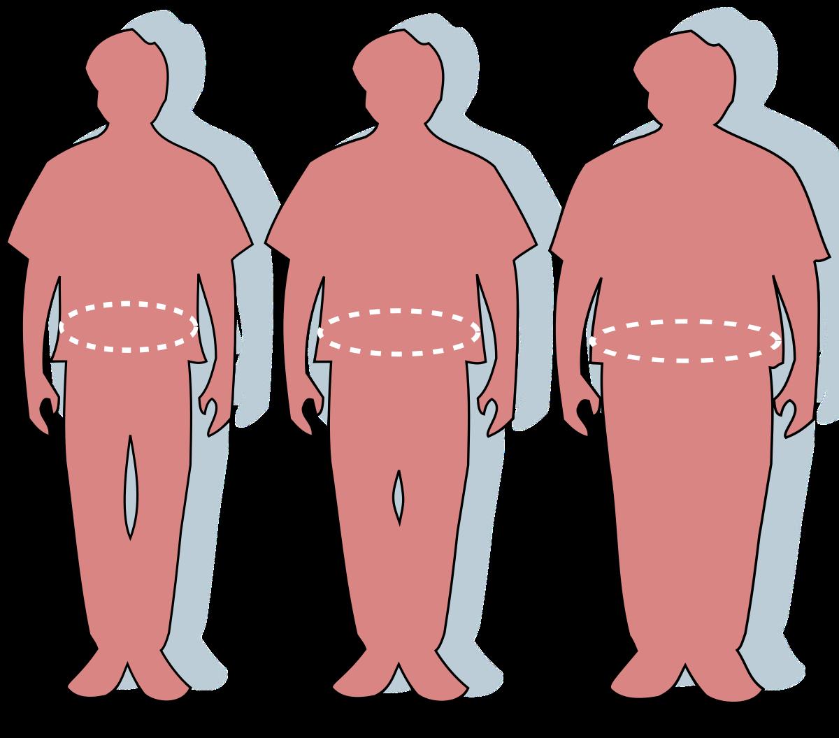 2 fokú elhízás és magas vérnyomás)