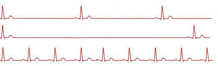 magas vérnyomás fenazepám