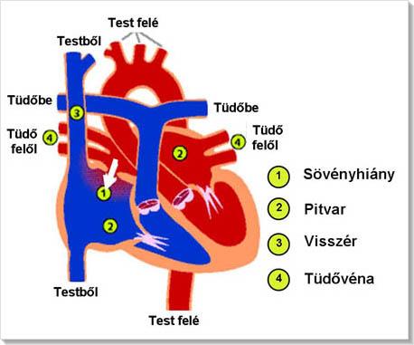a bal pitvari magas vérnyomás jelei)