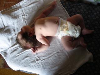 izom hipertónia szindróma csecsemőknél)