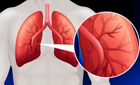 a pulmonalis keringés hipertóniájának okai)