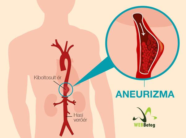 aorta aneurysma és magas vérnyomás)