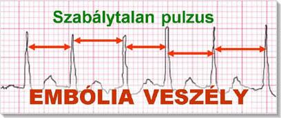 magas vérnyomás öröklődés a legfontosabb hipertónia videóról