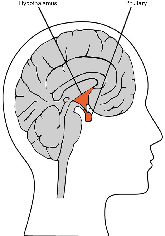 neuroendokrin hipertónia)