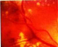 a hipertónia megváltozik a fundusban