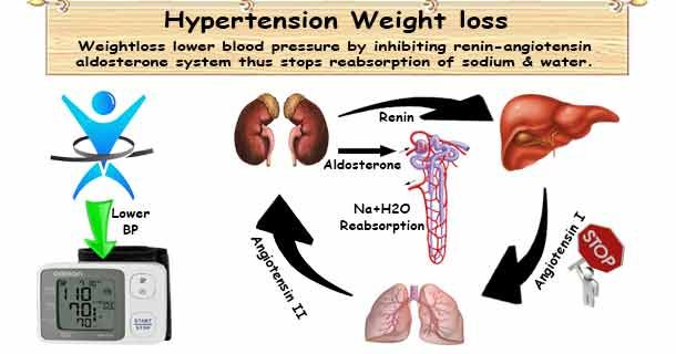 magas vérnyomás adományozással magas vérnyomás 1 szakasz 1 szakasz 2 fok kockázat