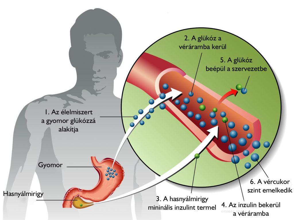 magas vérnyomás 2-es típusú cukorbetegség