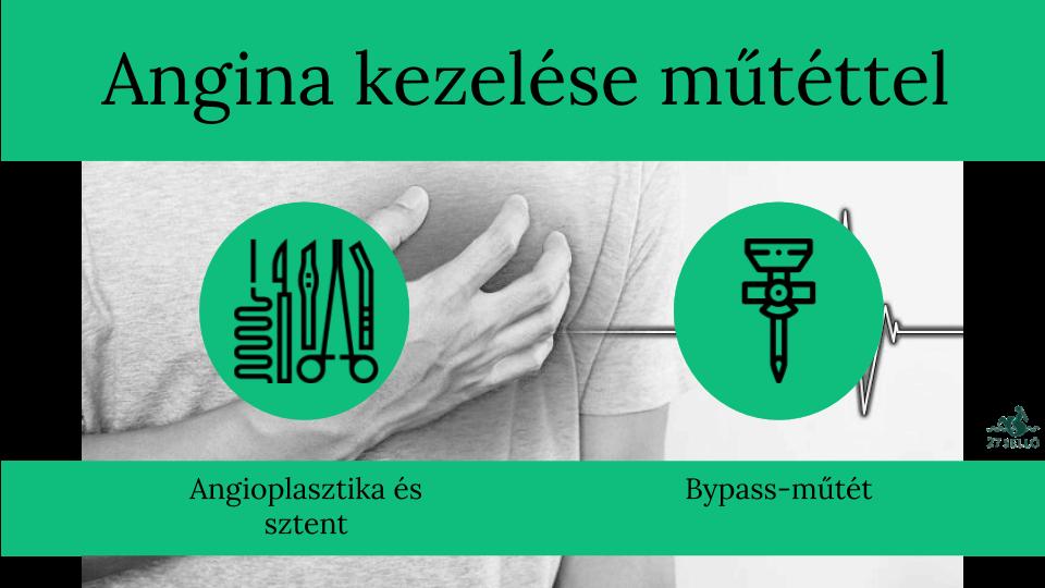 Angina pectoris - Betegségek   Budai Egészségközpont