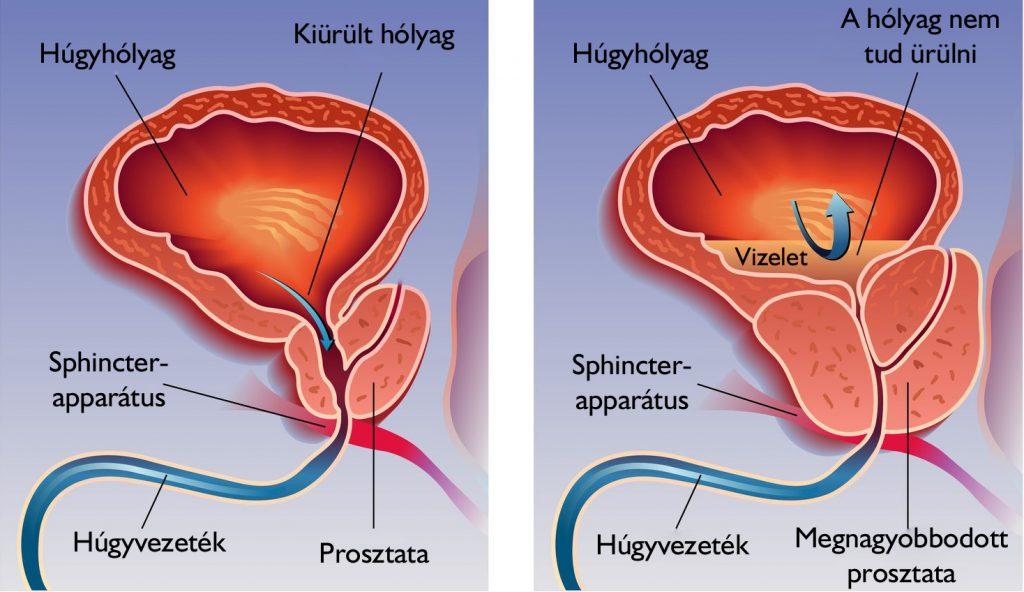 krónikus agyi magas vérnyomás melyik magas vérnyomás súlyosabb
