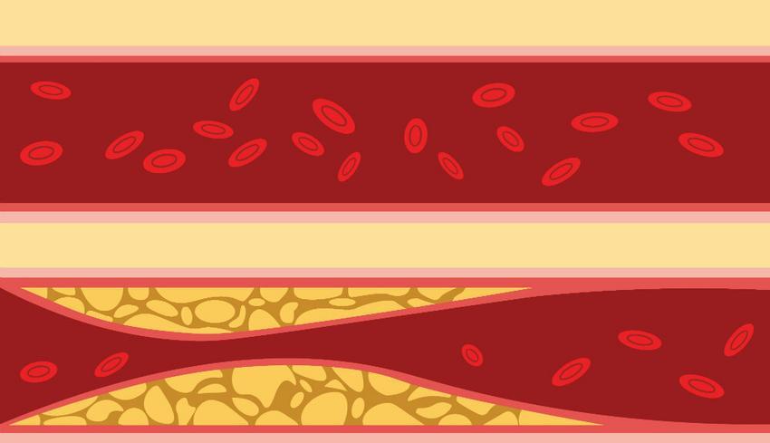 a magas vérnyomás mértékének szakaszai