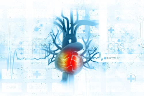 EKG a magas vérnyomásban végzett testmozgással)