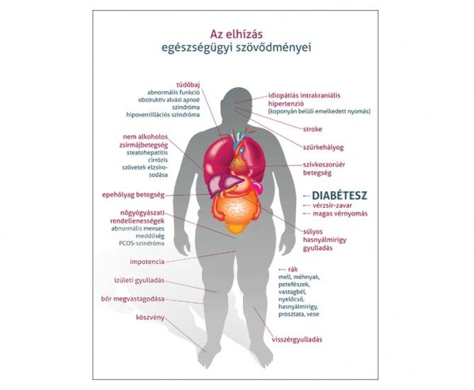 magas vérnyomás elhízás diéta)