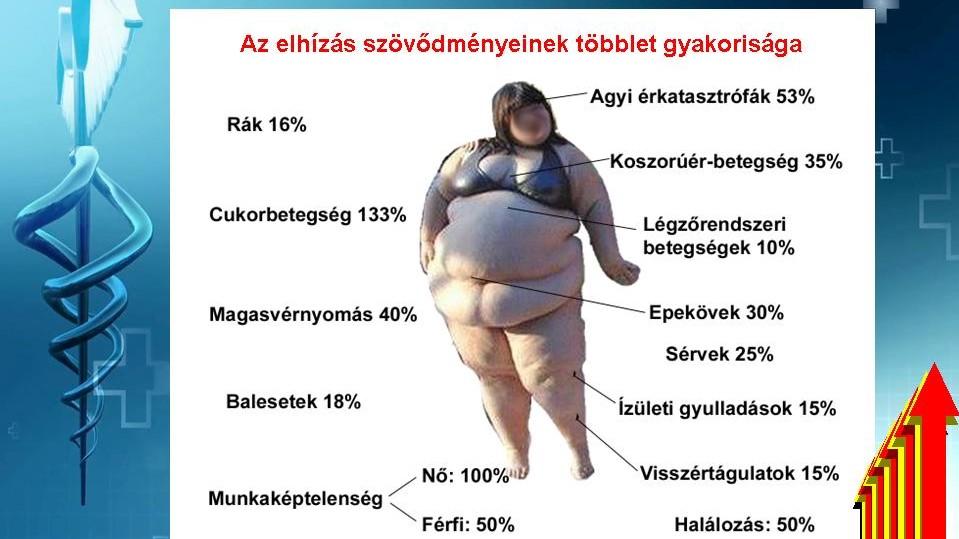 az elhízás valószínűsége magas vérnyomás esetén