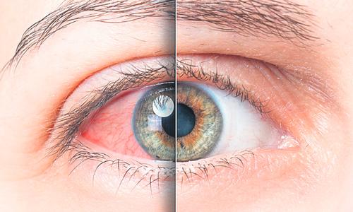 A szem fehérjefoltja: okok, tünetek, kezelés - Ütés