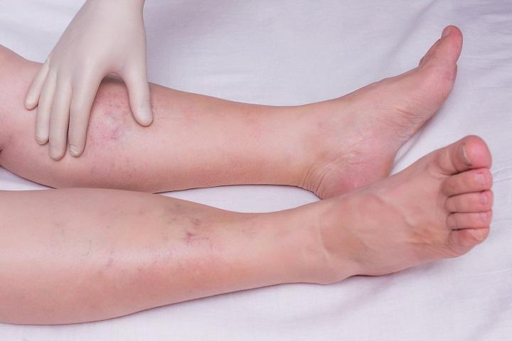 a lábak duzzanata magas vérnyomással