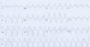 a hipertónia megjelenik-e az EKG-n)
