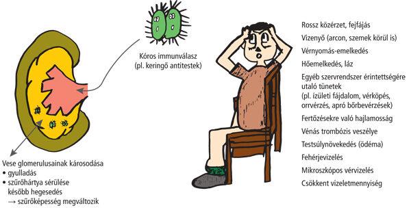 A glomerulonefritisz (veseszövet-gyulladás)