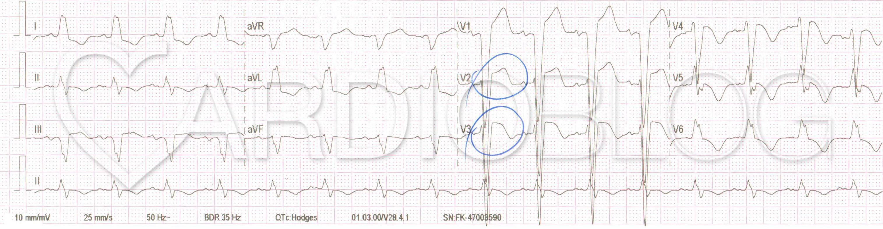 sinus tachycardia magas vérnyomás)