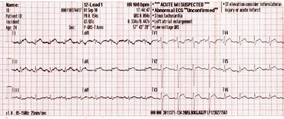 sinus tachycardia magas vérnyomás