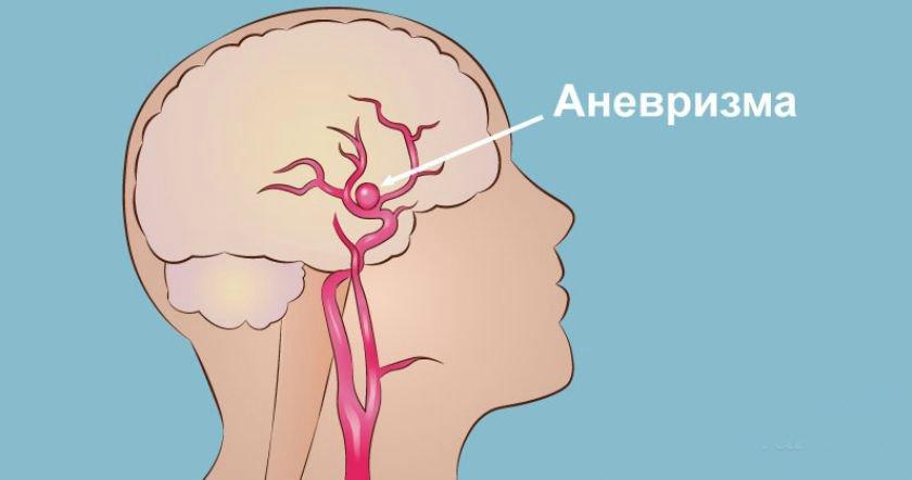 hipertóniás életkorlátozások)