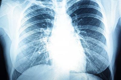 hogyan kell kezelni a pulmonalis hipertóniát)