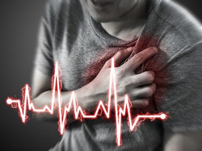 éjszakai tachycardia magas vérnyomás)