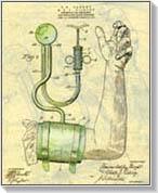 magas vérnyomás latinul ionizált víz hipertónia
