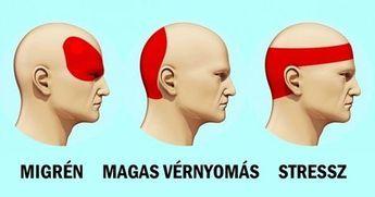 magas vérnyomású migrén a legjobb új gyógyszer a magas vérnyomás ellen